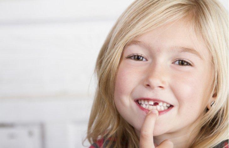Ako reklamovať plombu alebo korunku u zubára