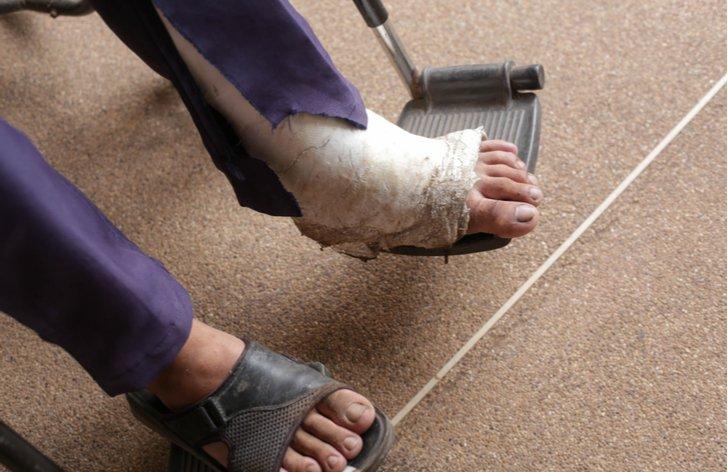 Zlomená noha